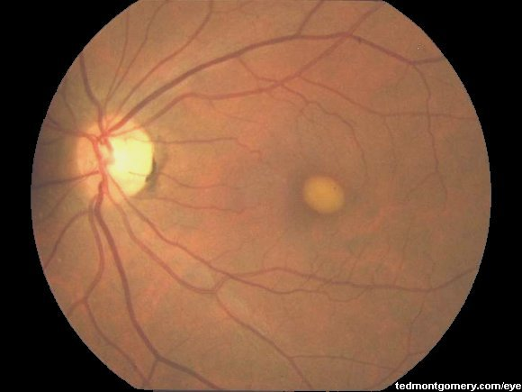 macular dystrophy retina - photo #7