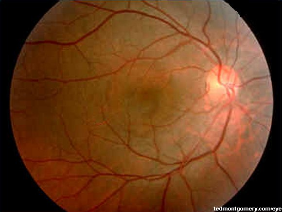 central serous retinopathy Central serous retinopathy is an eye condition where fluid accumulates underneath the retina and causes leakage or detachment which may resort in vision distortion.