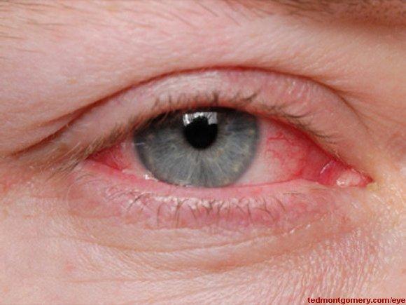 vernal (allergic) conjunctivitis, Skeleton
