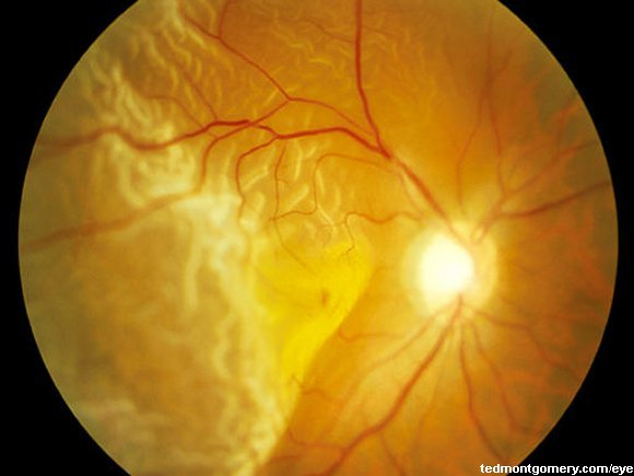 Fundus Photography Eye And Fundus Photography of