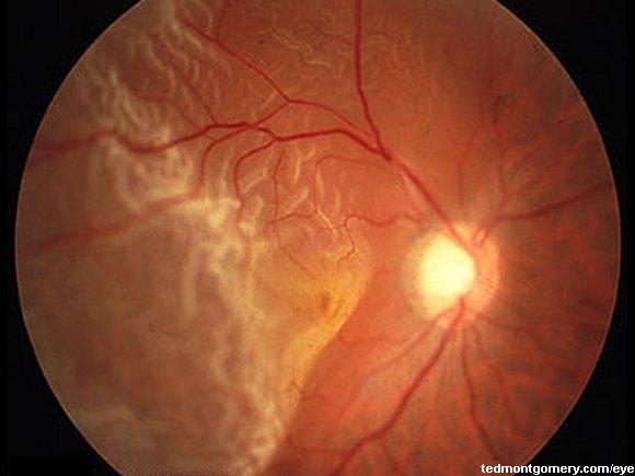 retinal detachment: #4, Skeleton