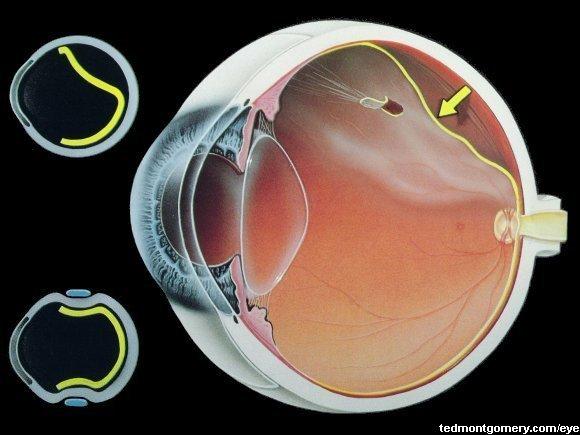 Оно характеризуется отхождением сетчатки глаза от сосудистой оболочки.  Если произошла отслойка сетчатки...